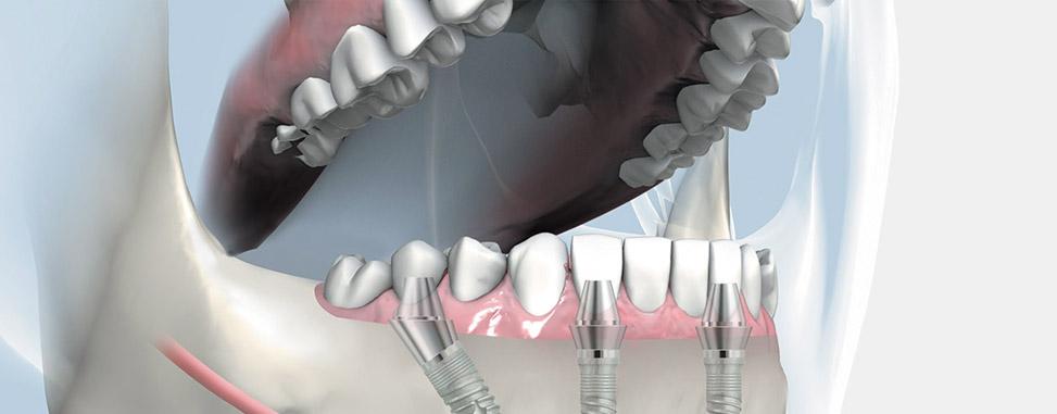 bir-gunde-implant-ve-dis