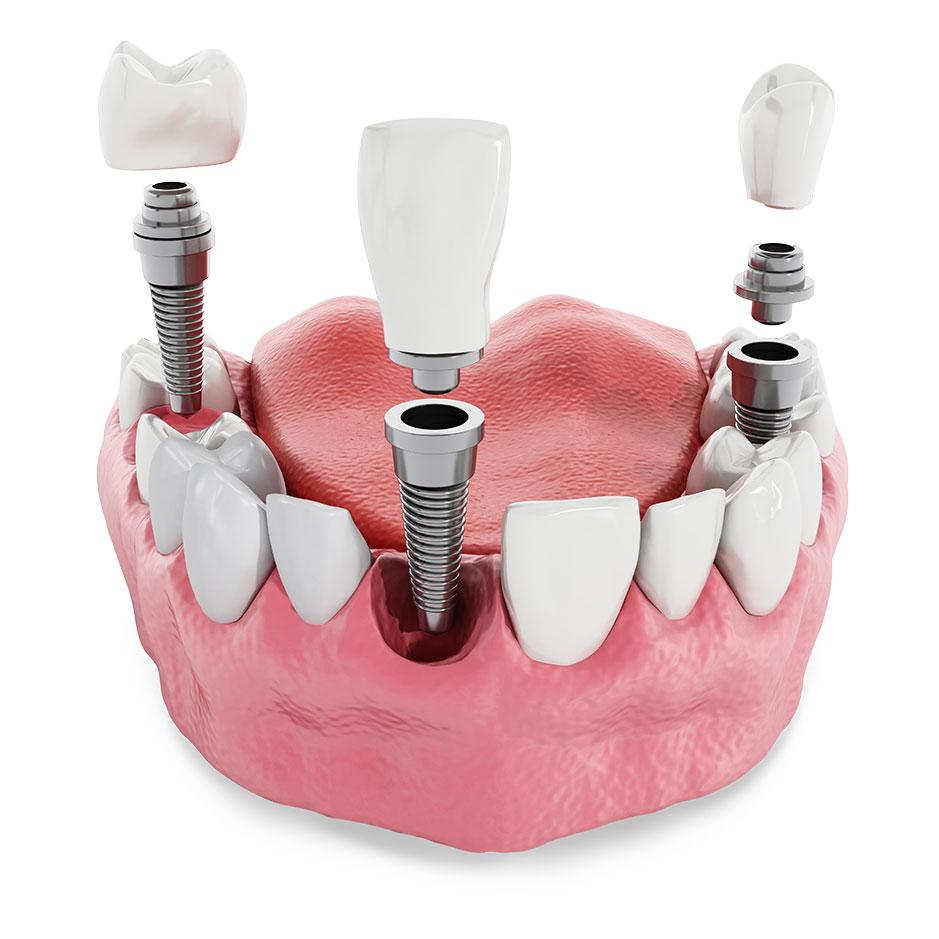 implant-v2