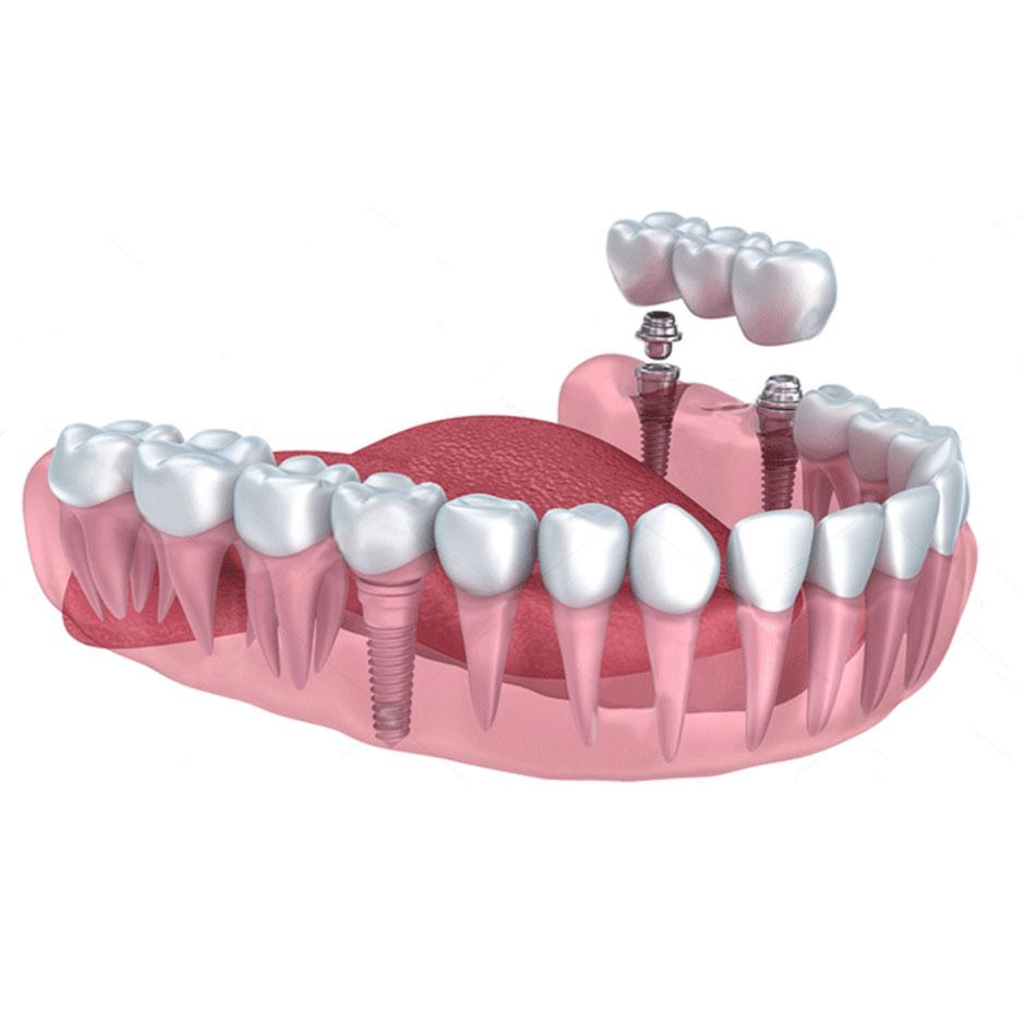 implant-v3